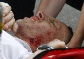 图文:环法第七赛段 热古在比赛中受伤
