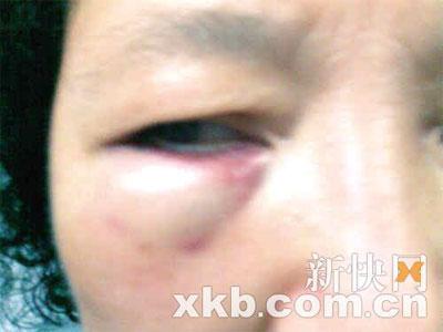 郑女士被打后右眼红肿,已住院多天。新快报记者 黄学民/摄