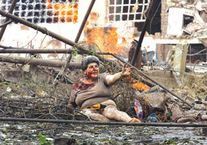 在格鲁吉亚哥里镇,一名受伤的女子在被俄空袭损坏的公寓楼前