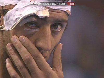 图文:男子自由式96公斤级 戈格舍利泽右眼伤势不轻