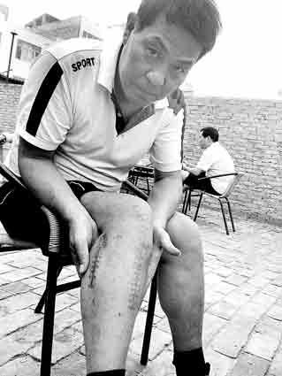 王浩在接受采访时,右腿忽然疼痛,他不得不按摩几下再说话
