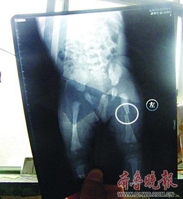 CT显示小梦竹左下肢骨折