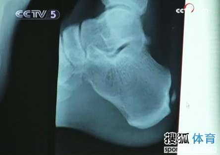 刘翔右脚跟腱的X光片,右侧白色小颗粒为病患之处。