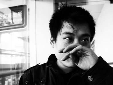 无辜受伤的当事人徐先生