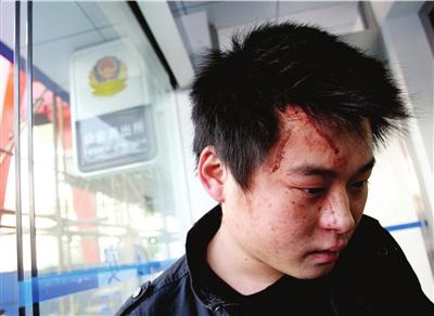 上海市民徐先生被打得头破血流。图/CFP
