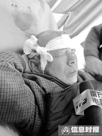 徐伯头上被缝了20多针。信息时报记者 巢晓 实习生 李慧芳 摄.jpg
