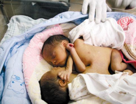 连体婴在保温箱中酣睡,医护人员不时为他们掖掖被子。本报记者 邓勃 实习生 林耀锵 摄