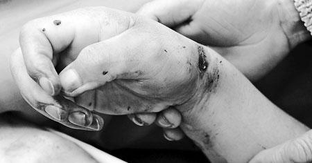 死者徐梗荣的手部浮肿,手腕上有明显的伤痕