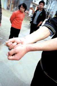 亦被传讯的吴明手腕处的伤痕