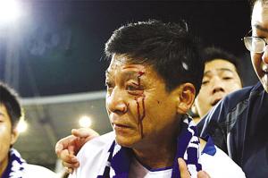 负伤的天津球迷。
