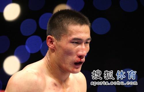 图文:北京散打队2-3负安徽 张永发鼻血横流
