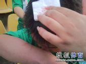 图文:[中超]青岛1-1杭州 球迷头部出血