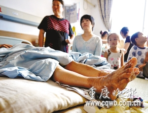 双脚被严重烧伤的陈泽英在医院救治 记者 冉文 摄