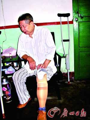 左腿按着假肢,老朱疼痛难忍。