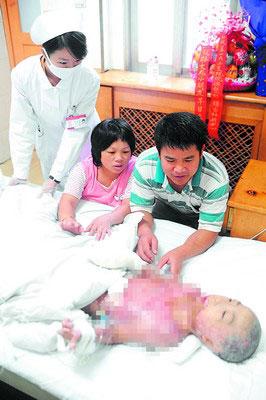 从手术室里出来,懂事的小文龙忍着麻醉醒来后的剧痛静静地躺在病床上,其养父母则寸步不离地守在旁边。小刘军摄