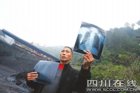 王成章拿出X光片讲诉自己的病情 摄影刘亮