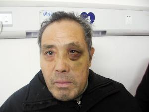 手术后装的假眼球图片_村民做鼻息肉手术后左眼失明 肿得像核桃(图)