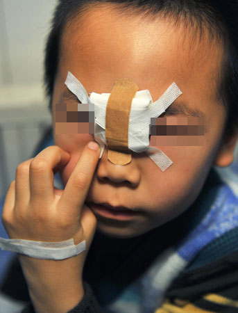 楠楠鼻梁处被铁锨砍出一道长约两厘米的伤口