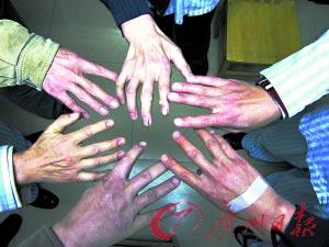 在接受治疗的6名工人的手关节已经变形。