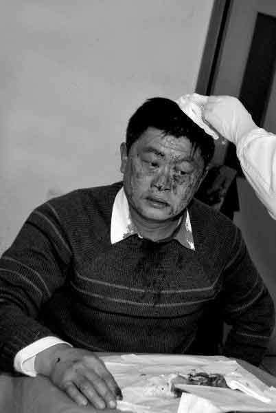 徐先生头部受伤,医生正对伤口进行处理。