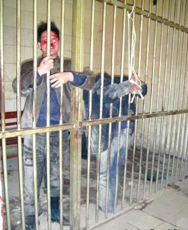郝凤义被反绑在栏杆上,刘志成满脸是血