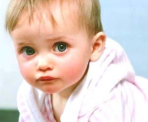 宝宝眼屎多的原因有哪些