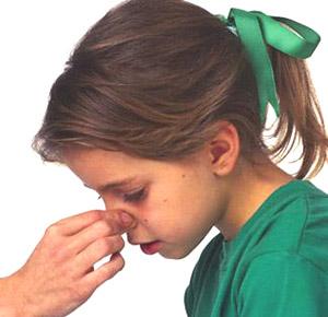 干燥季节儿童流鼻血应对技巧