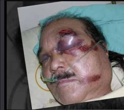 日籍老翁南部忠司骨折、颅内出血昏迷,至今仍在加护病房。 来源:台湾《苹果日报》