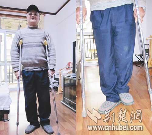 爹爹的左腿比右腿短了10厘米