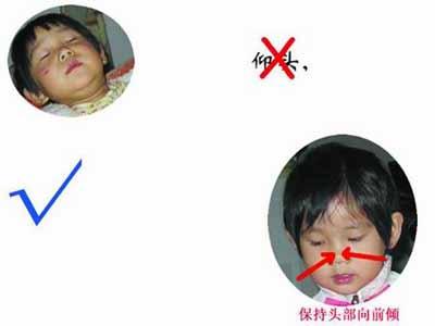 正常鼻腔内图片 内部结构