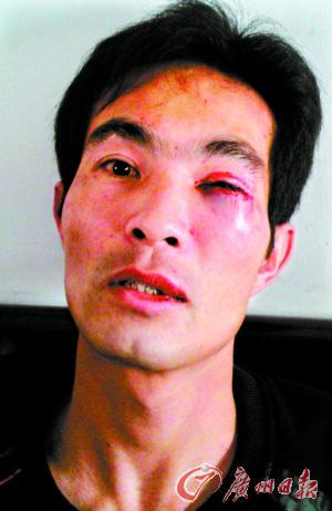 被打伤的范炳老师。