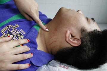 与物业发生冲突,宋女士的儿子颈部被抓伤。