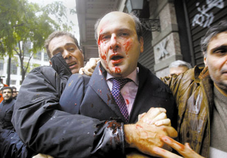 哈吉扎基斯被示威者打得血流满面
