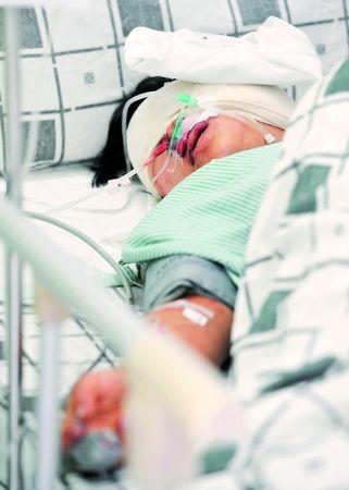 受伤的阿燕仍未脱离生命危险。何建 摄