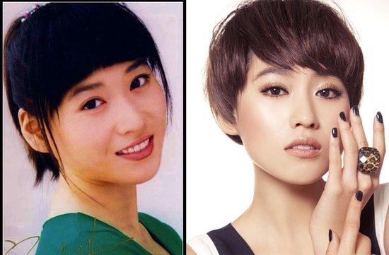 宁丹琳整形手术前后对比照