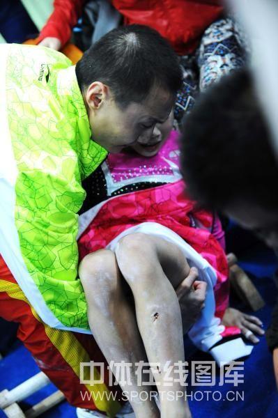 安徽选手庄锦霖在高低杠比赛中落杠受伤.图为庄锦霖落杠场下瞬间.