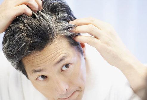 传言:过早白发意味着你的身体加速衰老