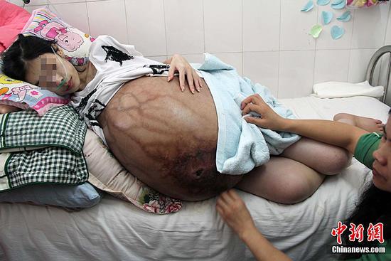 少女肚子大过孕妇 患病两年病因成谜