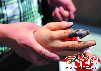 硅胶制作的假手手指被夹断