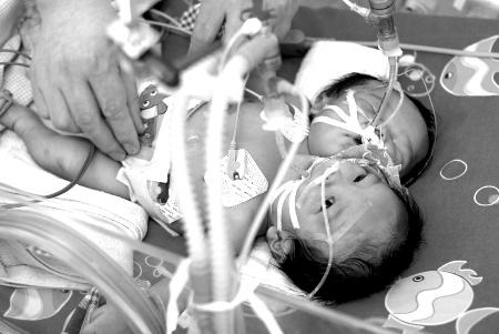 """四川""""双头女婴""""挺过两月 迎来手术希望(图)"""