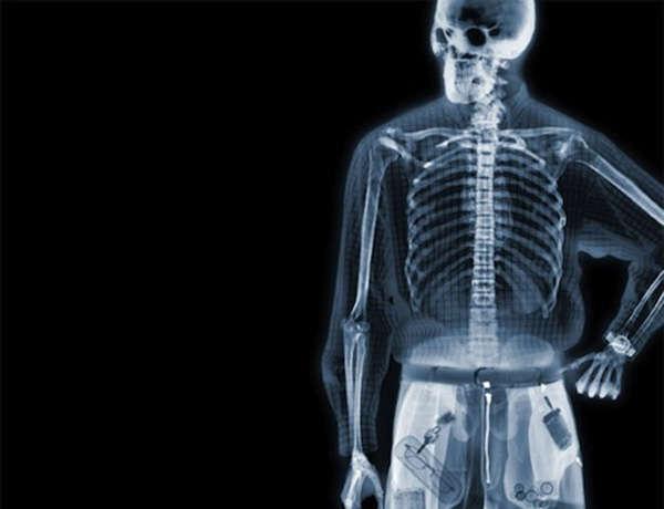 亚洲人体�9��yf�x�_透视人体:x射线下的人体艺术(组图)