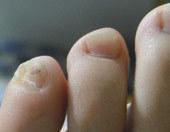 你的小脚趾甲分瓣儿吗