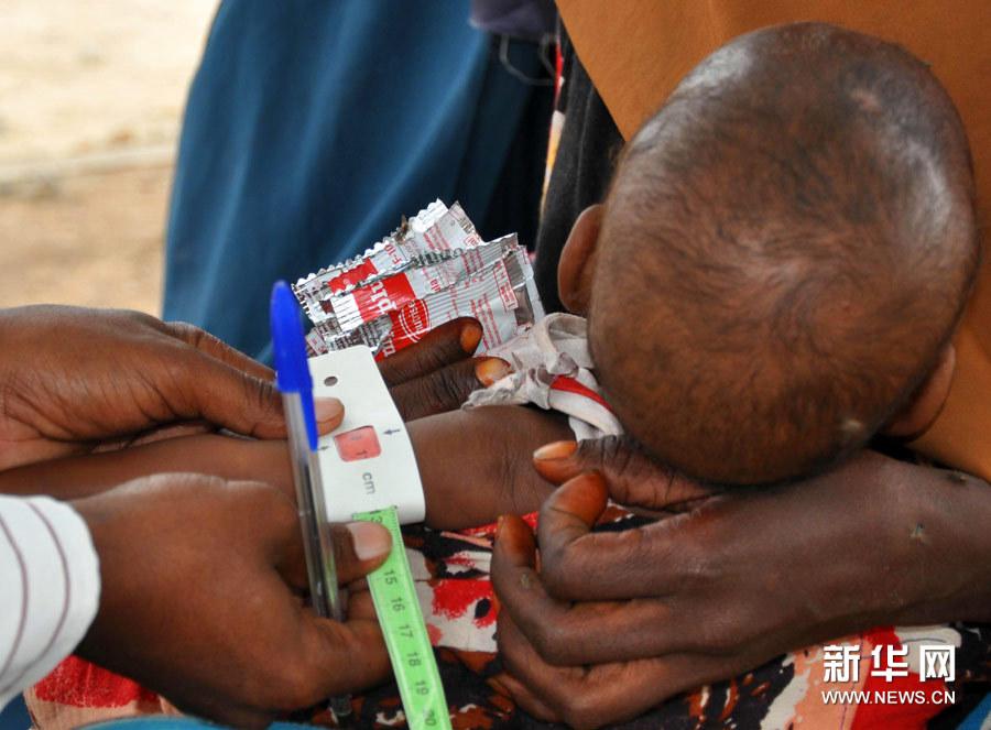 触目惊心的非洲干旱和饥荒组图 搜狐滚动