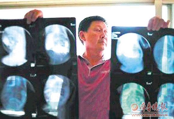 患儿的爷爷展示深圳市儿童医院给患儿拍的X光片。