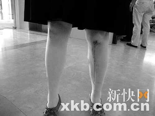 熊小姐腿部受伤流血。周达标/摄