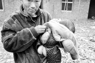 李宗彦老人向记者展示朵朵背后的瘤
