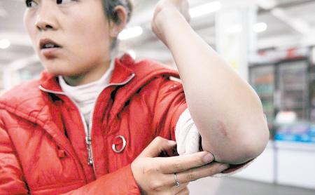 校工王红红胳膊被狗咬伤.图片
