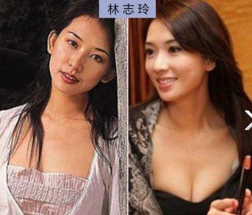 """刘雨欣杨幂柳岩平胸旧照曝光 揭10大""""假胸""""女星老底"""