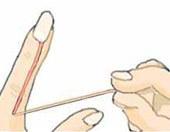 人体实验室18:指甲周围为啥长倒刺