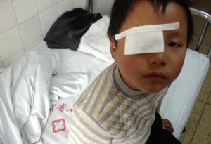 燃放鞭炮而受伤的小孩 金奉乾 摄